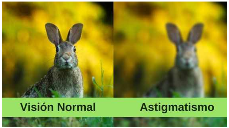 cirugia de astigmatismo puerto vallarta